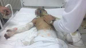 Консилиум врачей НИИ неотложной детской хирургии и травматологии Рошаля решил ампутировать правую руку истерзанной девочки.