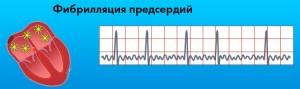 Согласно данным врачей, предрасположенность к нарушениям ритма сердца есть у каждого 30-го жителя нашей страны.