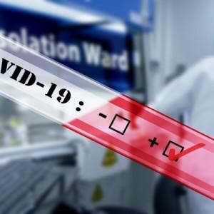 Минздрав заявил о регистрации тестов для определения иммунитета к COVID-19