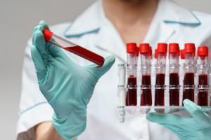 """Группы крови определяются генами, американские и японские учёные считают, что именно они буквально """"кодируют"""" организм на ту или иную реакцию на алкоголь."""