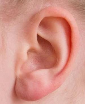 С помощью разработки можно проводить диагностикуповреждений слуха, тренировать слух, а также настраивать слуховые аппараты индивидуально для каждого пациента.