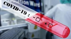 17 человек в регионе умерли от коронавируса.