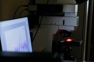 Самарские ученые разрабатывают метод лазерной экспресс-диагностики рака простаты
